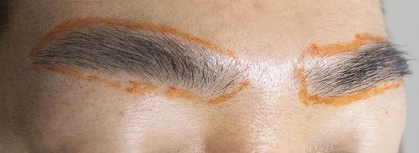 眉毛永久脱毛範囲