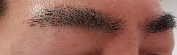眉毛医療レーザー脱毛