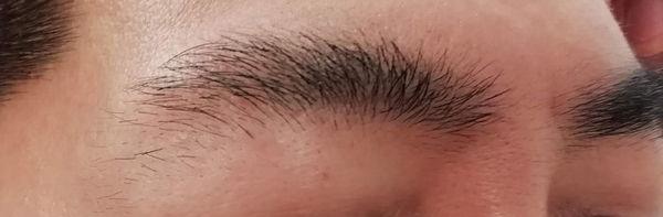 眉毛永久脱毛