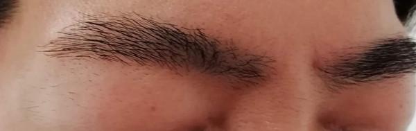 眉毛レーザー脱毛結果