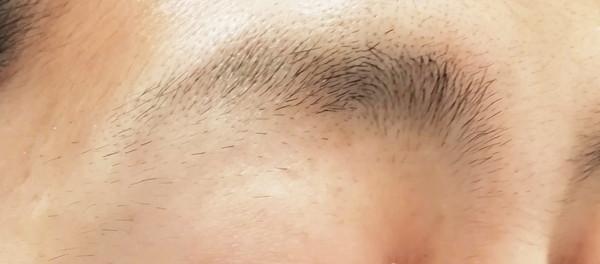 眉毛ニードル脱毛結果