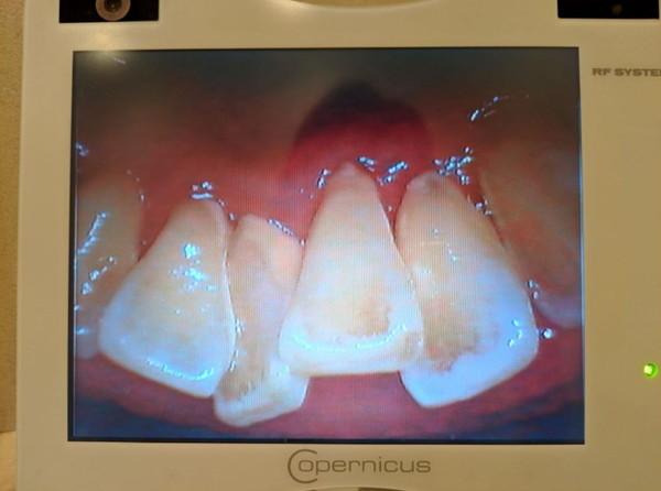 自費診療クリーニング歯