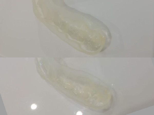 マウスピース洗浄剤効果